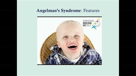 Angelman's Syndrome - CRASH! Medical Review Series - YouTube
