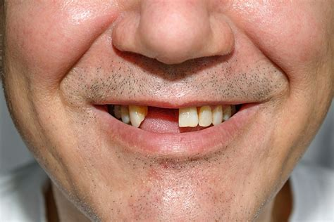 Smile Without Teeth With Bristles