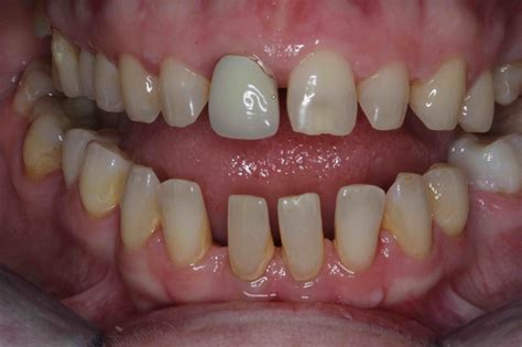 Before & After Porcelain Veneers Pictures - Cosmetic